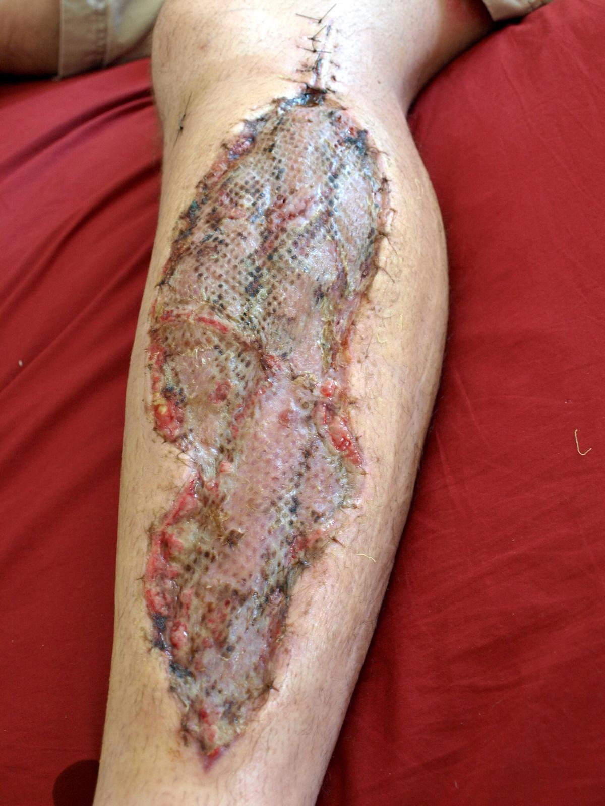 Tiefe Beinvenenthrombose Facharztwissen