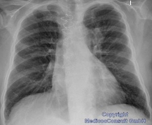 Fall BronchialCa 01 RöThorax 01+