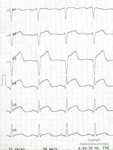 Herzinfarkt Einfach Erklart
