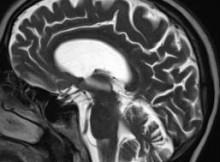 Gehirn 01 CT 02 MC