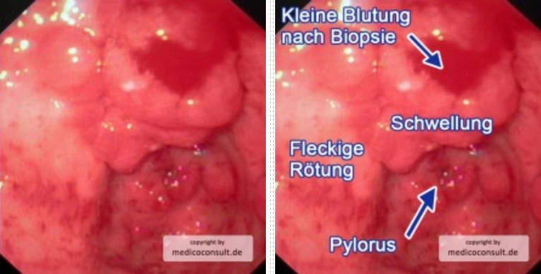 Gastritis in Bildern - Facharztwissen