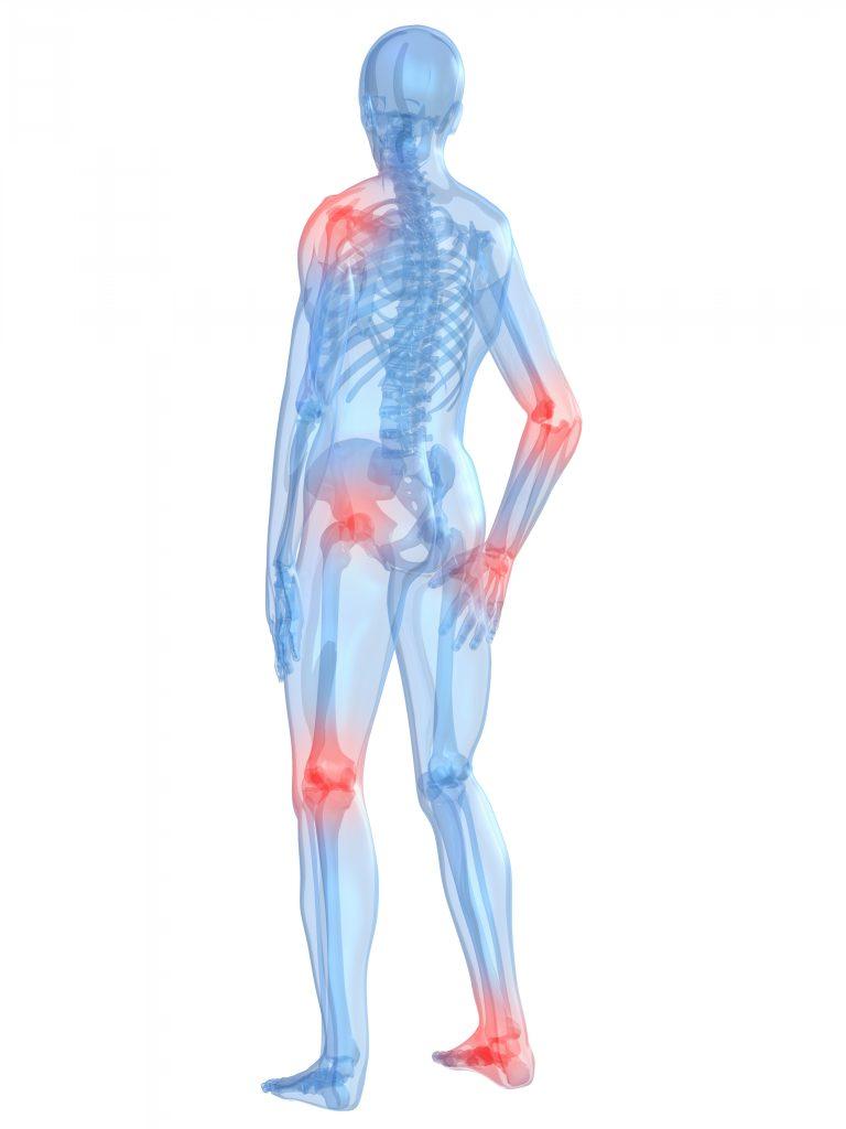 Gelenkschmerzen - Arthralgie - Facharztwissen