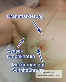 220px-Brustkrebs-Markierung-2